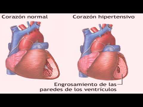 Ejemplo de cartas ambulancia con hipertensión
