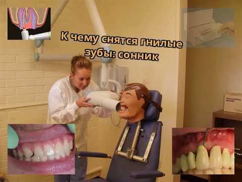 К чему снятся гнилые зубы: сонник