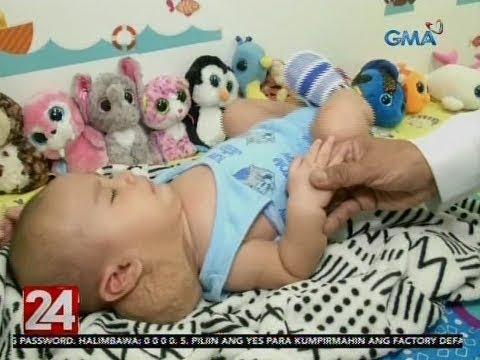 [GMA]  24 Oras: Bukol sa leeg ng isang sanggol, bahagya nang lumiit