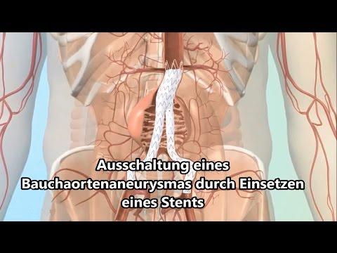 Rückenschmerzen bei der Fütterung