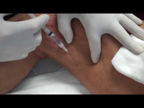 Ból żylaki goleni