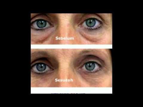 Luxusní paleta očních stínů proti stárnutí