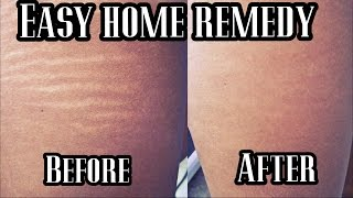 Get rid of STRETCH Marks QUICKLY! | VERY Effective