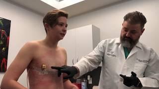 Full, Uncut Top Surgery Reveal!!