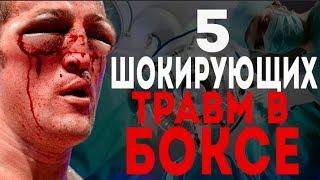 5 Шокирующих Травм В Боксе