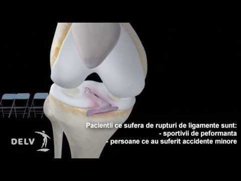 De ce articulațiile șoldului rănesc tratamentul