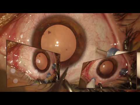 La démangeaison et les oedèmes sur les yeux
