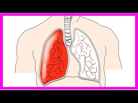 Die Thrombose mesenterialnych der Behälter der Krankenwagen
