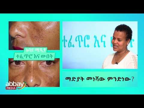 Ethiopia - የማዲያት መነሻውና መፍተሄወቹ - ሰብለ ተስፋዬ - የቆዳ አጠባበቅ ባለሞያ
