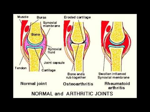 Die Auswirkungen von Schmerzen im Kniegelenk
