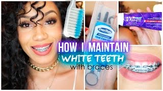 How I Maintain White Teeth with Braces