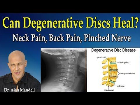 Medikamente zur Behandlung von Osteoarthritis des Knies 2 Grad