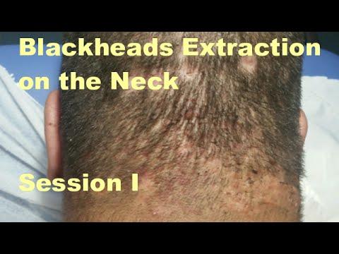 Blackhead Extraction on the Neck