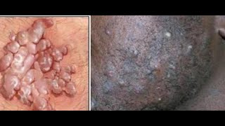How to get rid of  hair bumps from the pubic area and face /warts and what you should know