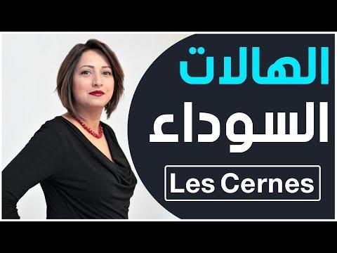 Dr Imene Ben Amara Médecin Esthétique