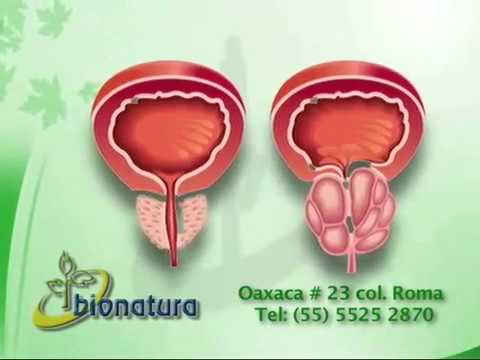 Cum de próstata sin manos