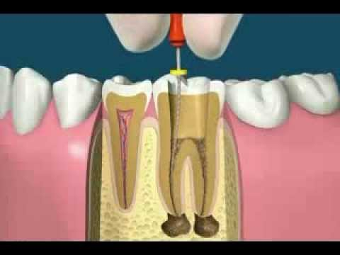 Root Canal: Procedure and Guidelines
