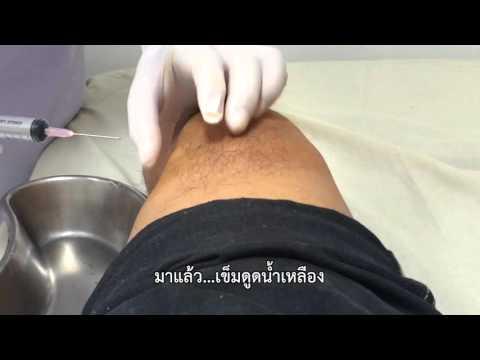 คุณสามารถทำนวดเท้ามีเส้นเลือดแมงมุม