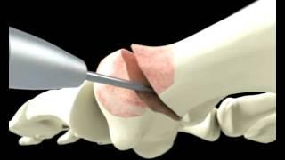 Hallux Valgus 3D - Clínica Podológica DyN