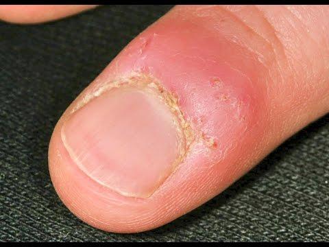 Duração de fungo que se ruboriza entre dedos