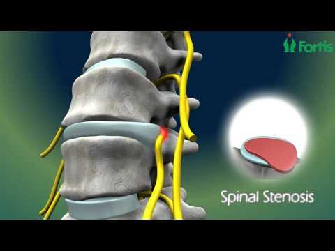 Osteocondrosi dellimaging toracico