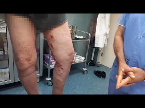 Chirurgia laser a thrombophlebitis