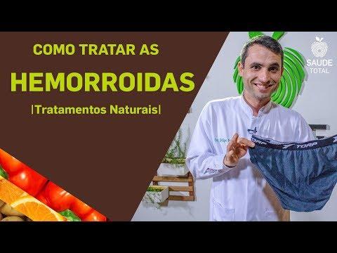 Como tratar as Hemorroidas | Tratamentos Naturais | Saúde Total