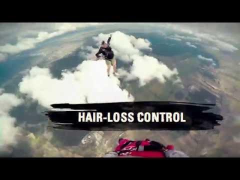 Jeśli rzęsy wypadają i co zrobić włosy