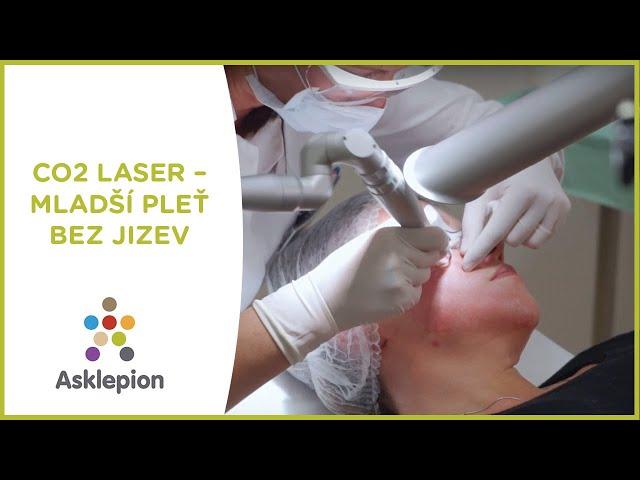 СО2 лазер (удаление шрамов, рубцов и лечение акне)