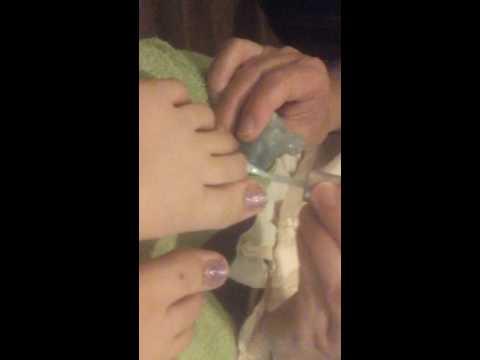 Ang sakit ng kuko halamang-singaw
