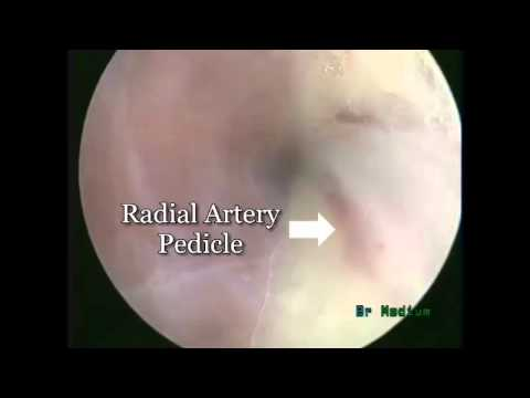 Endovascular Radial Artery Harvesting