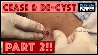 Cease & De-Cyst, Part Two!