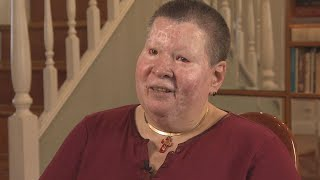 Woman Who Had Acid Thrown on Her Remembers Attack