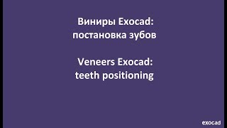 Виниры Exocad: 3) постановка зубов / Veneers Exocad: 3) teeth positioning