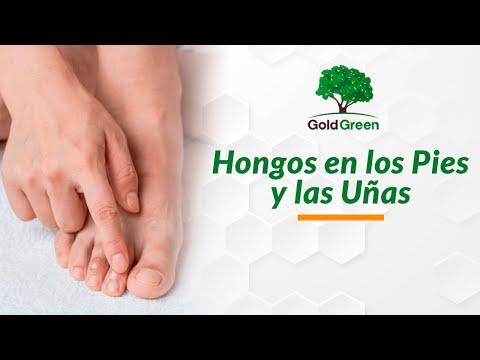 La medicina contra el hongo sobre las plantas de los pies