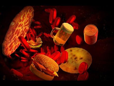 Fracture des membres inférieurs chez les diabétiques