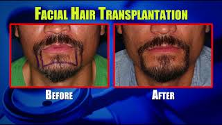 FACIAL HAIR TRANSPLANTS FOR MEN