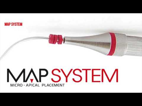 MAP case study by Massimo Giovarruscio – Chamber Perforation 1