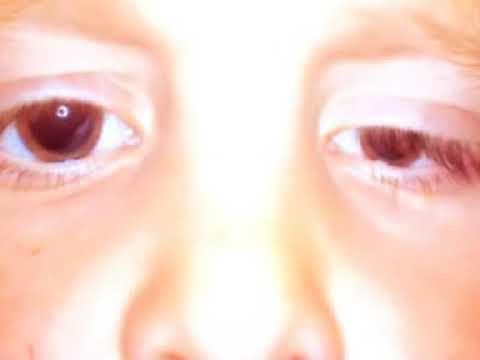 Szenilis myopia mi ez