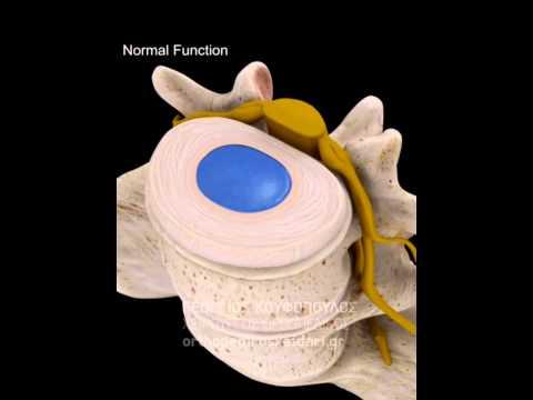 Ενδοκρινικές αρτηριακή υπέρταση παθογένεση