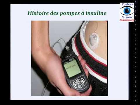 Le diabète et lexercice vidéo