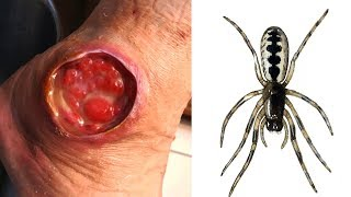 7 Most Dangerous Bugs On The Planet