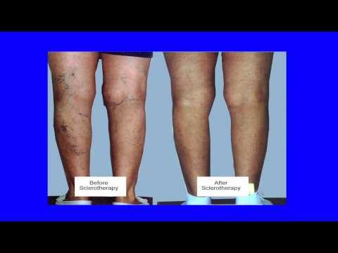 What are Spider Veins? How are they treated?