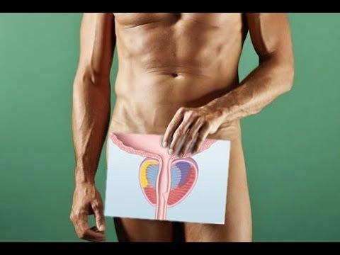 Лечение от простатита nsp