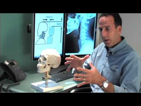 Video Whiplash Injury Symtoms and Treatment Naperville IL