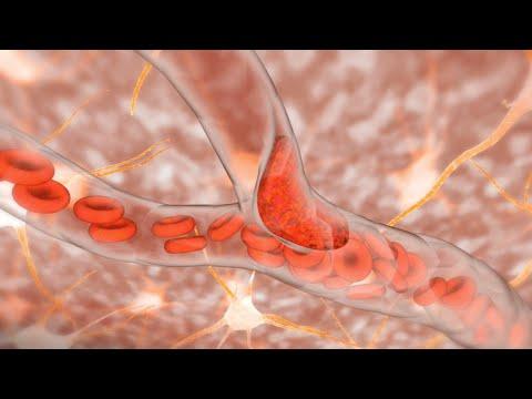 Kurkuma u liječenju hipertenzije