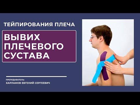 Тейпирование плеча.  Вывих в плечевом суставе