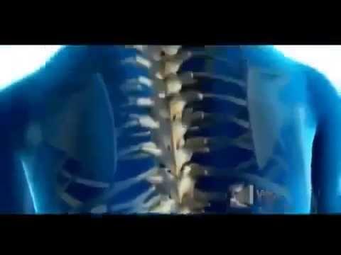 Программы для лечения сколиоза