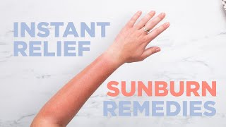 Instant Relief Sunburn Remedies