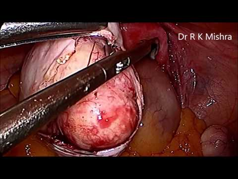 Myomectomy and Dermoid Ovarian Cystectomy